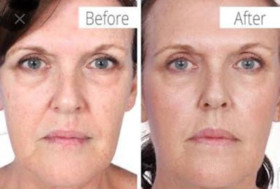 Collagen Induction