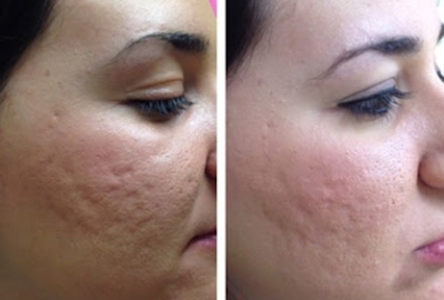 Skin Needling Images before and after